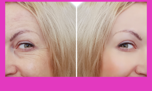This Stunned Doctors: Wrinkles Removed Like Magic! (Try Tonight)